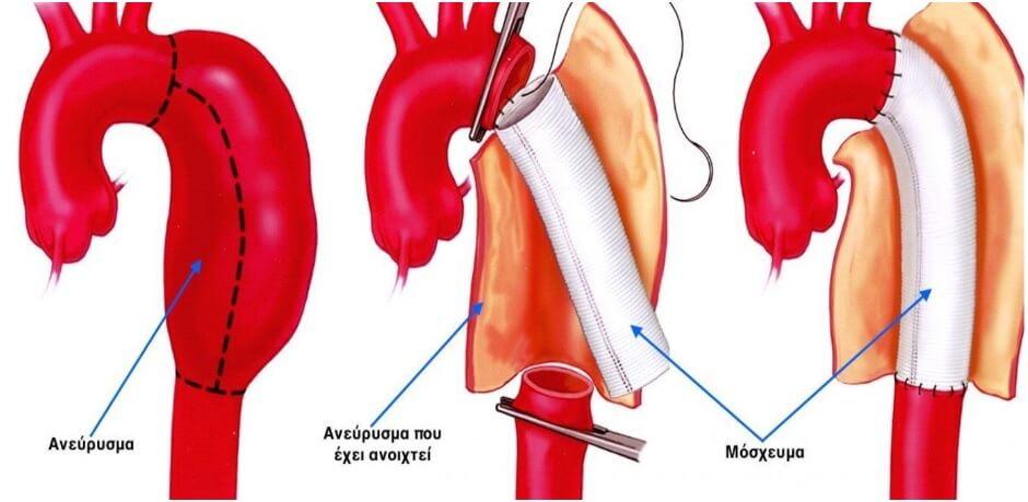 Ανοικτή χειρουργική αποκατάσταση ανευρύσματος κατιούσας θωρακικής αορτής με συνθετικό μόσχευμα